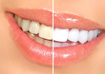 Before and after of teeth whitening treatment