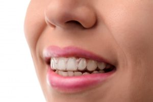woman smiling wearing Invisalign